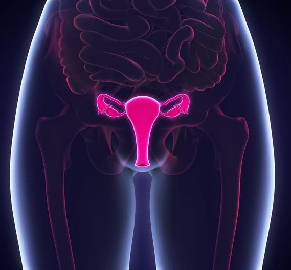 cancer-de-utero-tratamientos-istock