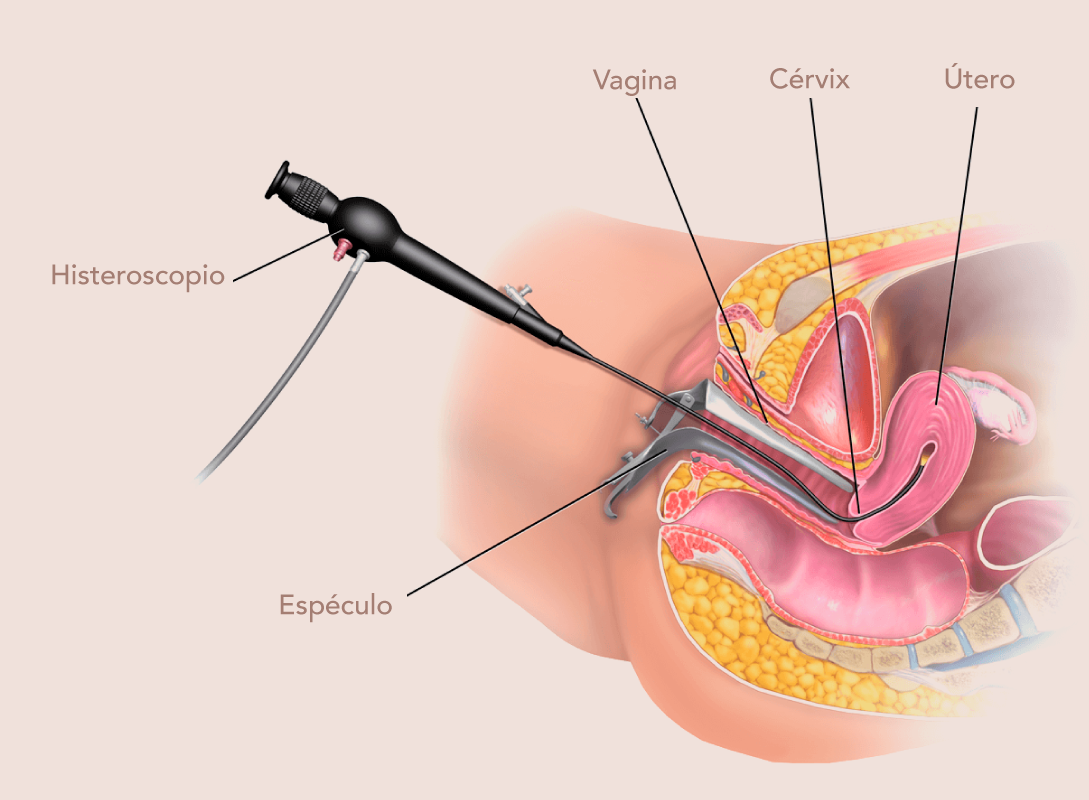 Histeroscopia-diagnostica-y-operatoria-Barranquilla